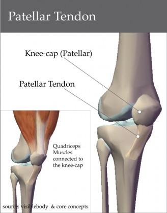 Pictures of Patellar Tendon Vs Patellar Ligament - www.kidskunst.info
